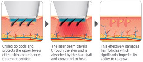 laser hair removal treatment in Chandigarh |Process diagram