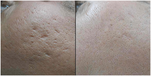laser-scar-removal-treatment