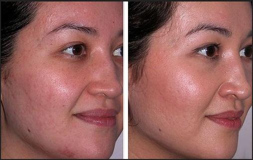 Facial oil reduction